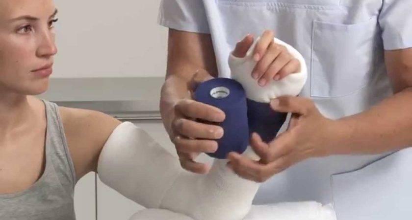 Plaster Paris Elbow Splint Application Youtube